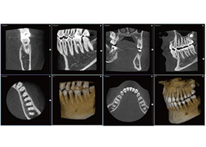 CT写真イメージ