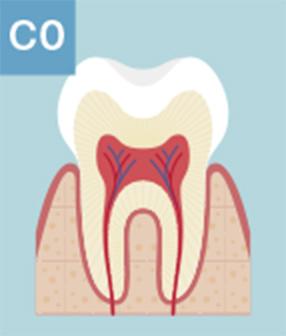 CO:痛いなどの症状がなく、初期のむし歯