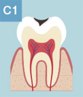 C1:むし歯の始まり