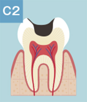 C2:象牙質のむし歯(深い穴が開いてしまった状態)