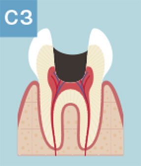 C3:歯髄炎(歯の神経までむし歯が到達した状態)