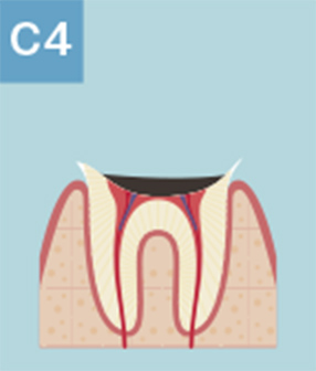 C4:歯が溶けてしまい、歯根だけが残っている状態